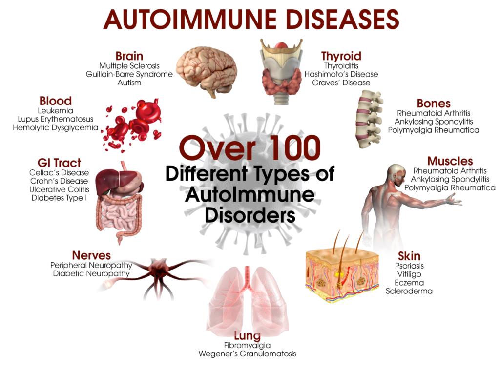 Autoimmuunhaiguste pilt (1)