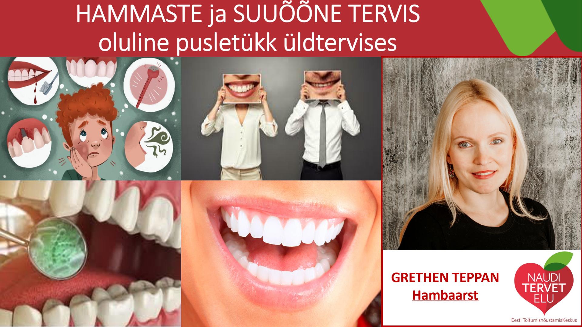Hammaste ja suuõõne tervis